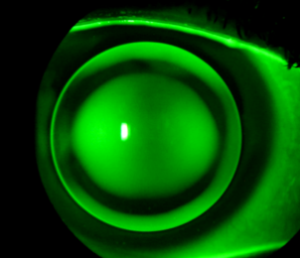 corneal gas permeable lens with dye